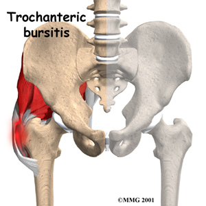 a description of bursitis as a common condition that can cause much pain and swelling around an affe Learn about the potential side effects of pantoprazole includes common and rare  pantoprazole may cause  puffiness or swelling of the eyelids or around.